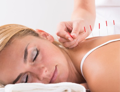 Acupuncture | NE Calgary Physiotherapist | Max Physiotherapy